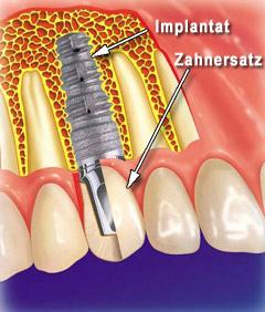 was_ist_ein_implantat_001